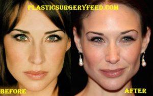 claire forlain eyelid