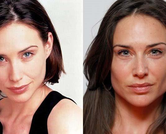 claire forlani plastic surgery
