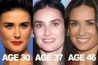 demi moore plastic surgery