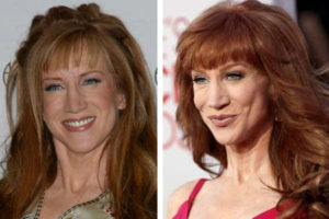 kathy griffin liposuction