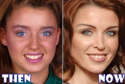 dannii minogue plastic surgery