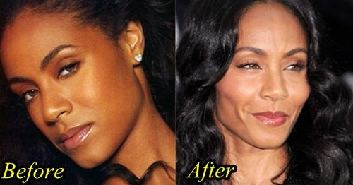 jada pinkett smith plastic surgery