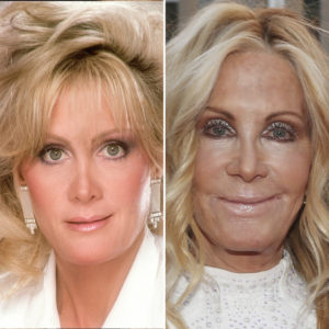 joan van ark plastic surgery
