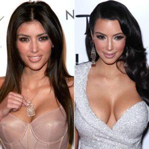 kim kardashian facelift