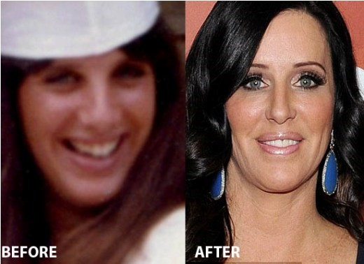 Patti stanger is who Patti Stanger