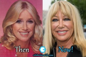 suzanne somers facelift