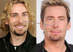 chad kroeger facelift
