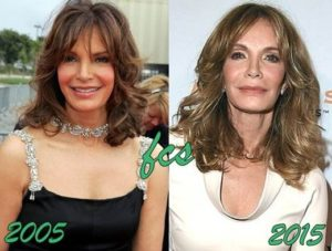 jacylyn smith facelift