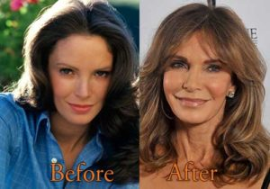 jacylyn smith plastic surgery