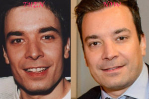 jimmy fallon facelift
