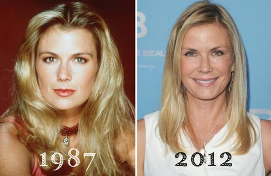 katherine kelly lang facelift