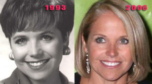 katie couric facelift