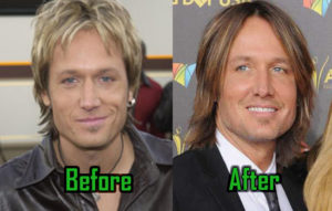 keith urban facelift
