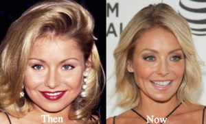 kelly ripa facelift