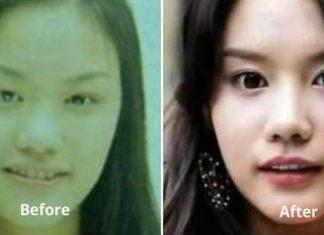 kim ah joong cover