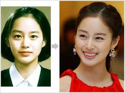 kim tae hee plastic surgery