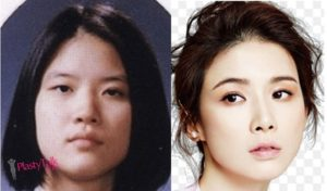 lee bo young facelift