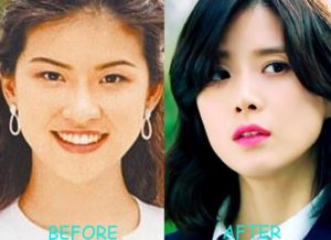 lee bo young plastic surgery