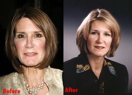mary matalin plastic surgery