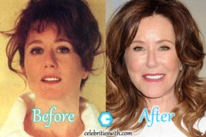 mary mcdonnell botox