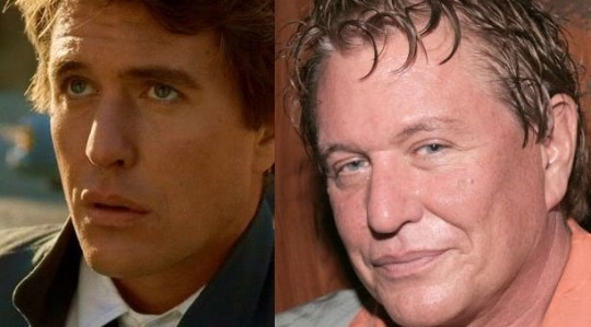 tom berenger plastic surgery