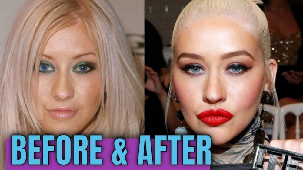 Christina Aguilera Plastic Surgery – With Before And After Photos