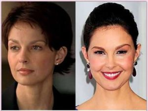 ashley judd lip filler