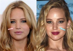 jennifer lawrence nose job