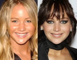 jennifer lawrence plastic surgery