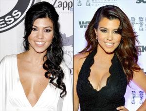 kourtney kardashian breast implant