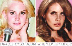 lana del ray plastic surgery