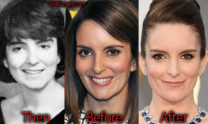 tina fey plastic surgery